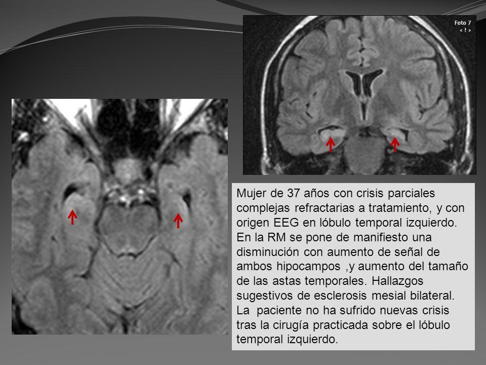 Mujer de 37 años con crisis parciales complejas refractarias a tratamiento, y con origen EEG en lóbulo temporal izquierdo. En la RM se pone de manifie