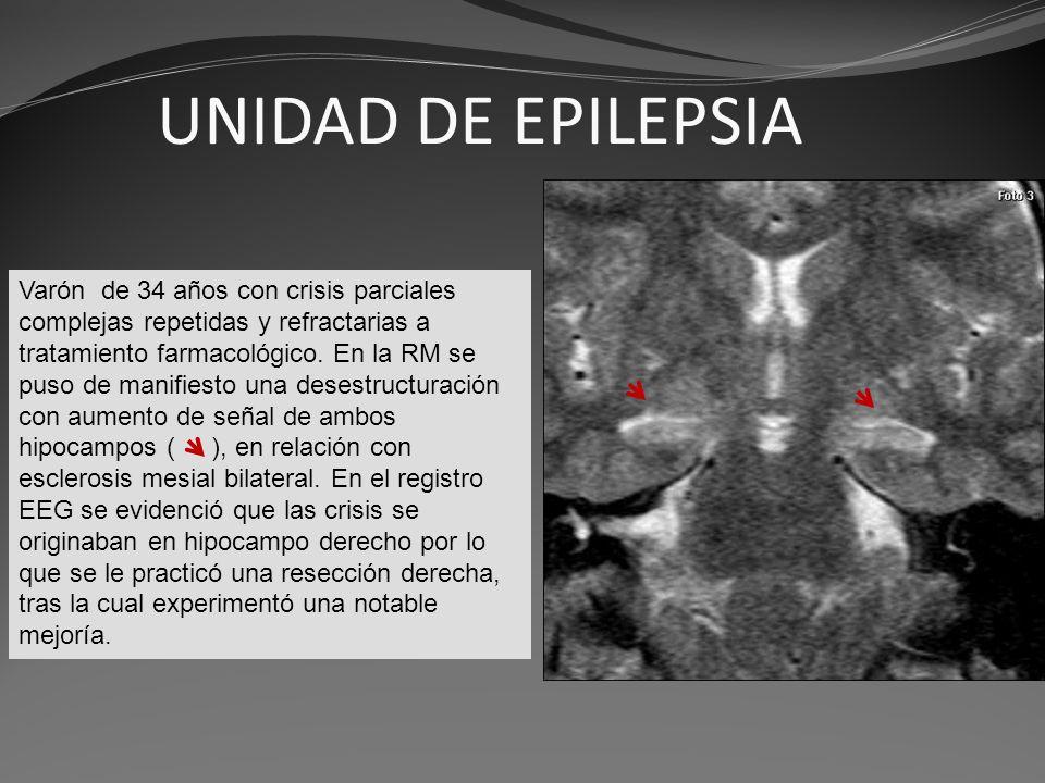 UNIDAD DE EPILEPSIA Varón de 34 años con crisis parciales complejas repetidas y refractarias a tratamiento farmacológico. En la RM se puso de manifies