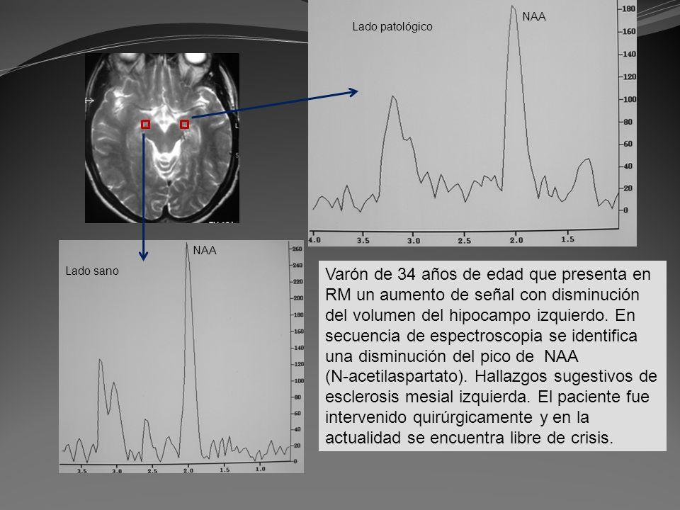 Varón de 34 años de edad que presenta en RM un aumento de señal con disminución del volumen del hipocampo izquierdo. En secuencia de espectroscopia se