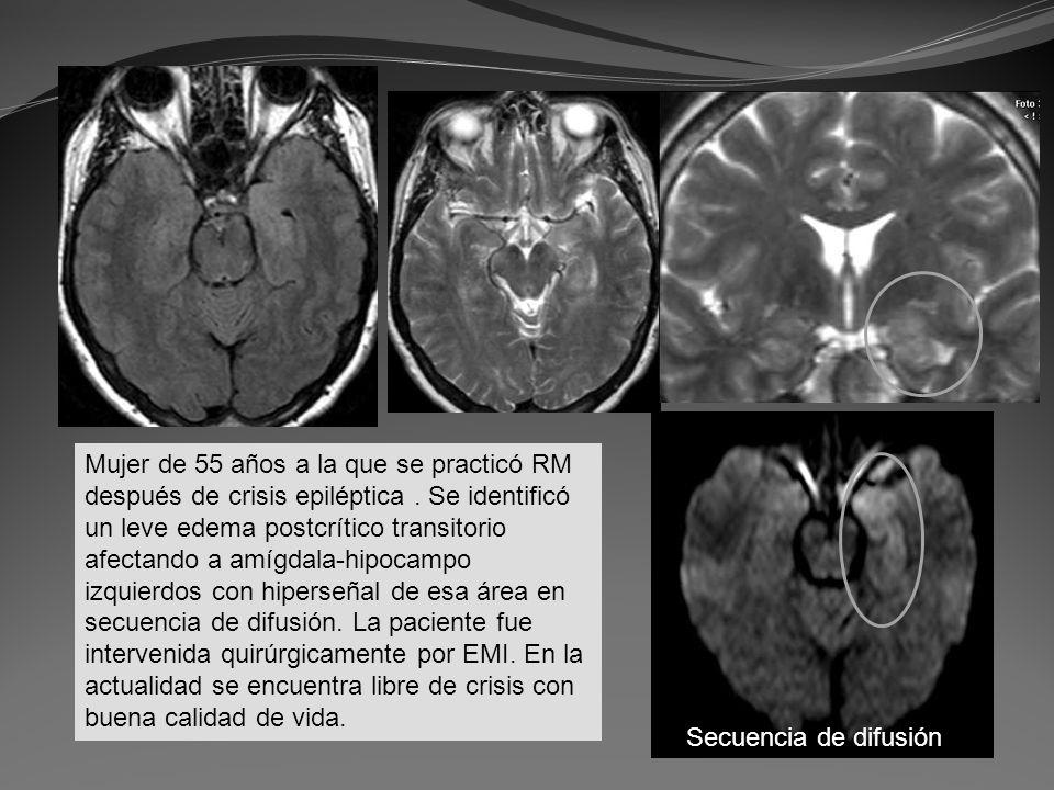Mujer de 55 años a la que se practicó RM después de crisis epiléptica. Se identificó un leve edema postcrítico transitorio afectando a amígdala-hipoca
