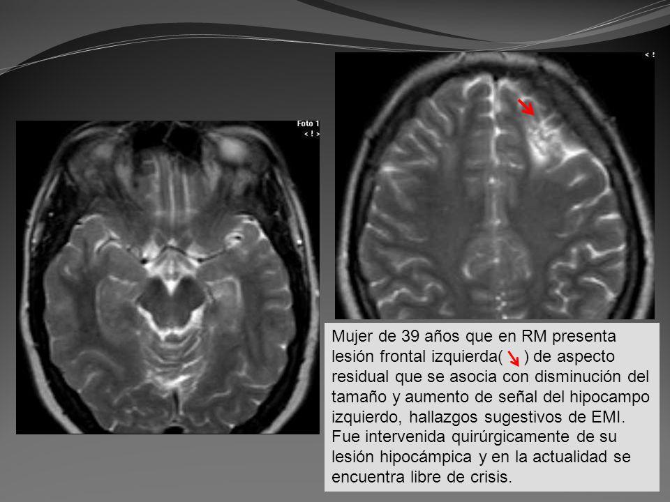 Mujer de 39 años que en RM presenta lesión frontal izquierda( ) de aspecto residual que se asocia con disminución del tamaño y aumento de señal del hi