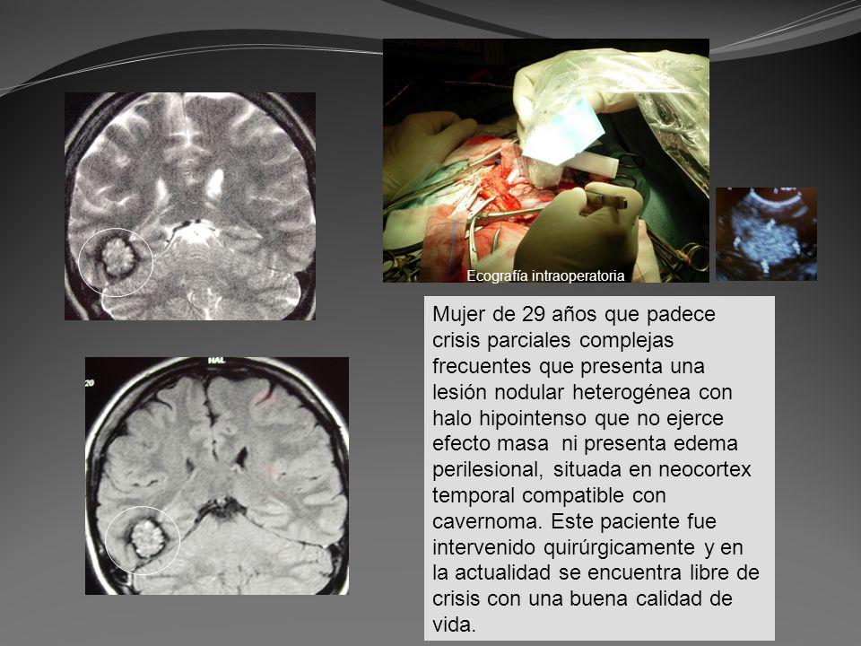 Mujer de 29 años que padece crisis parciales complejas frecuentes que presenta una lesión nodular heterogénea con halo hipointenso que no ejerce efect