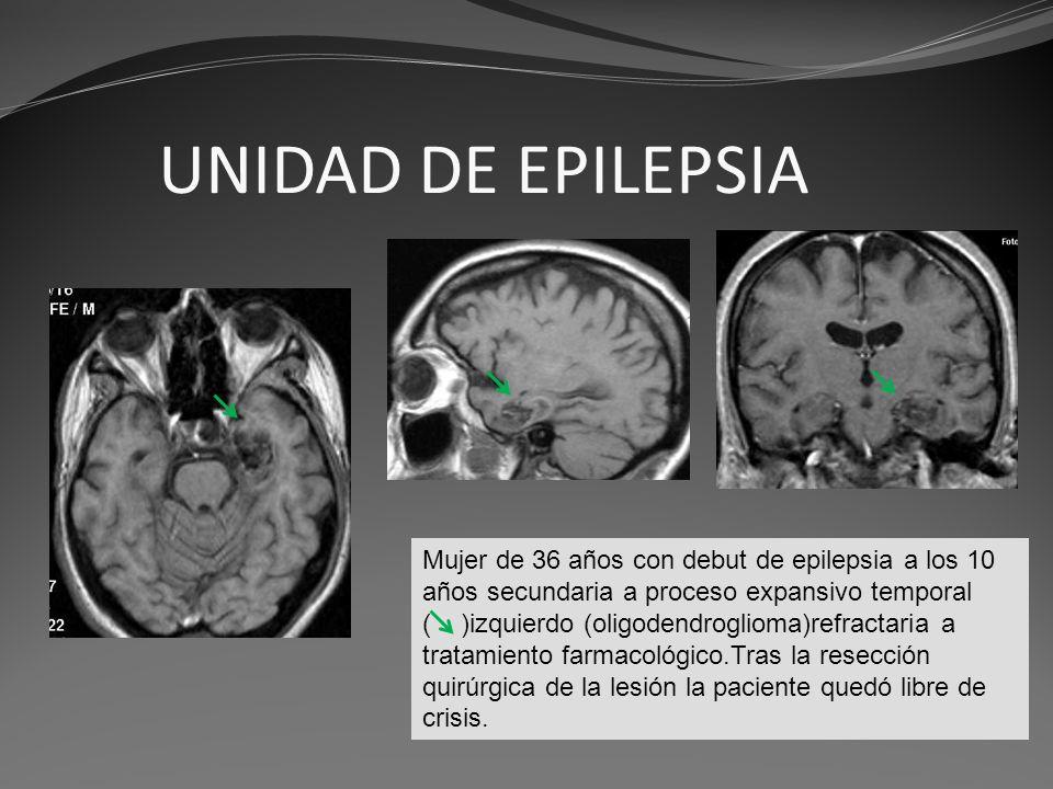 UNIDAD DE EPILEPSIA Mujer de 36 años con debut de epilepsia a los 10 años secundaria a proceso expansivo temporal ( )izquierdo (oligodendroglioma)refr
