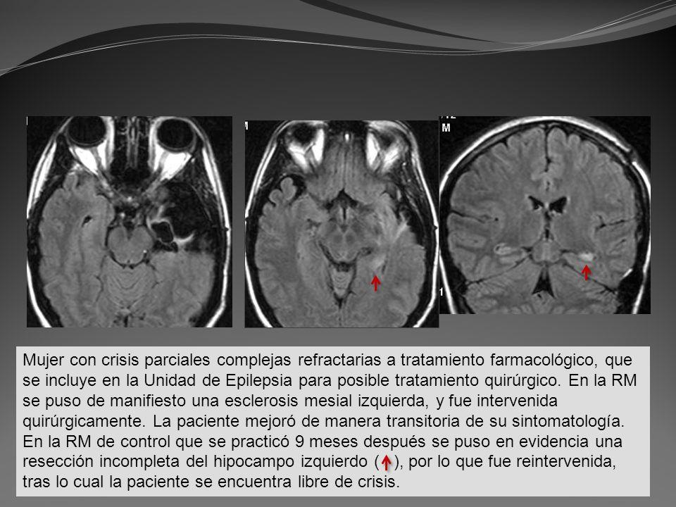 Mujer con crisis parciales complejas refractarias a tratamiento farmacológico, que se incluye en la Unidad de Epilepsia para posible tratamiento quirú