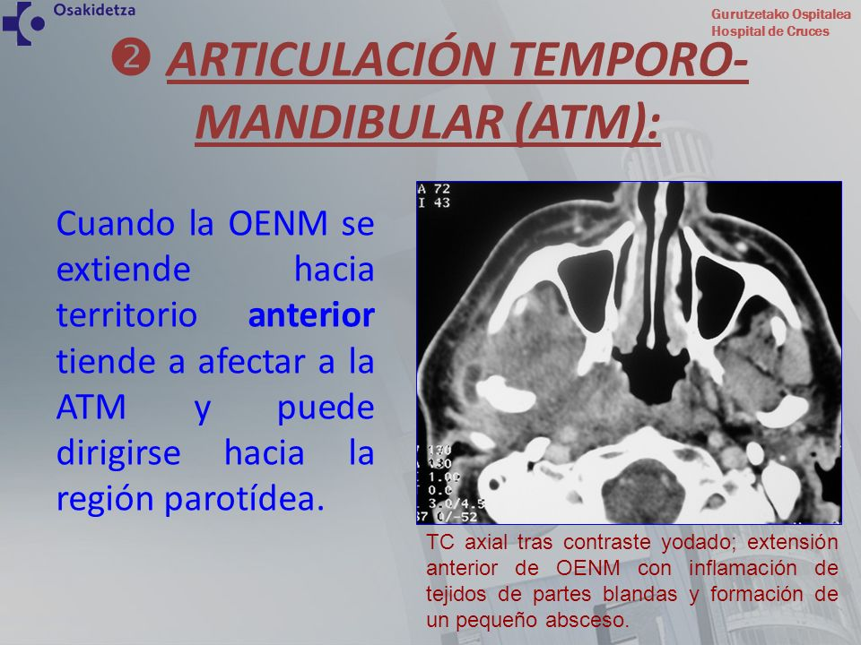 Gurutzetako Ospitalea Hospital de Cruces Cuando la OENM se extiende hacia territorio anterior tiende a afectar a la ATM y puede dirigirse hacia la reg