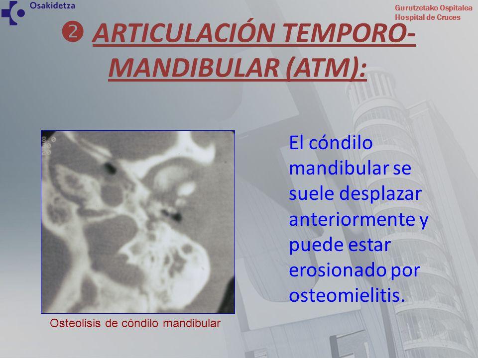 Gurutzetako Ospitalea Hospital de Cruces El cóndilo mandibular se suele desplazar anteriormente y puede estar erosionado por osteomielitis. ARTICULACI
