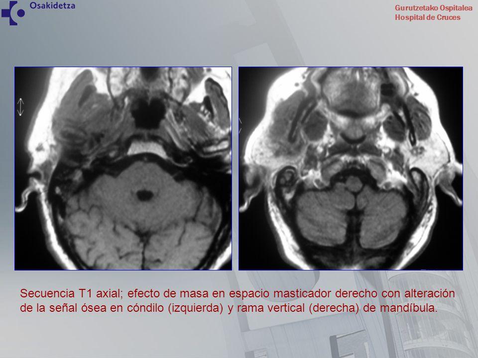 Gurutzetako Ospitalea Hospital de Cruces Secuencia T1 axial; efecto de masa en espacio masticador derecho con alteración de la señal ósea en cóndilo (