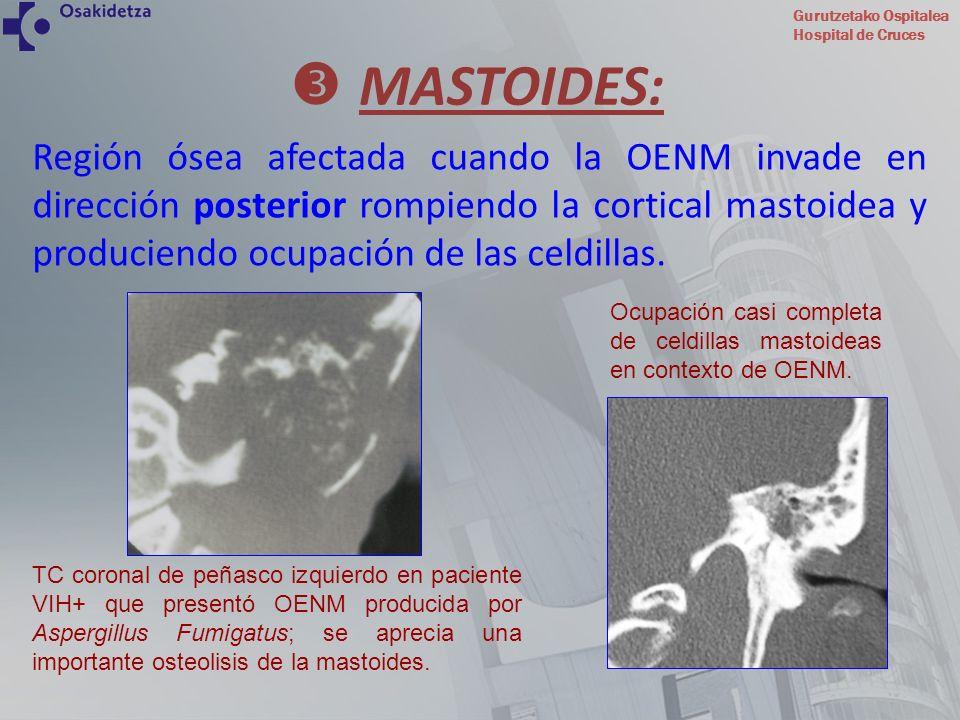 Gurutzetako Ospitalea Hospital de Cruces Región ósea afectada cuando la OENM invade en dirección posterior rompiendo la cortical mastoidea y producien