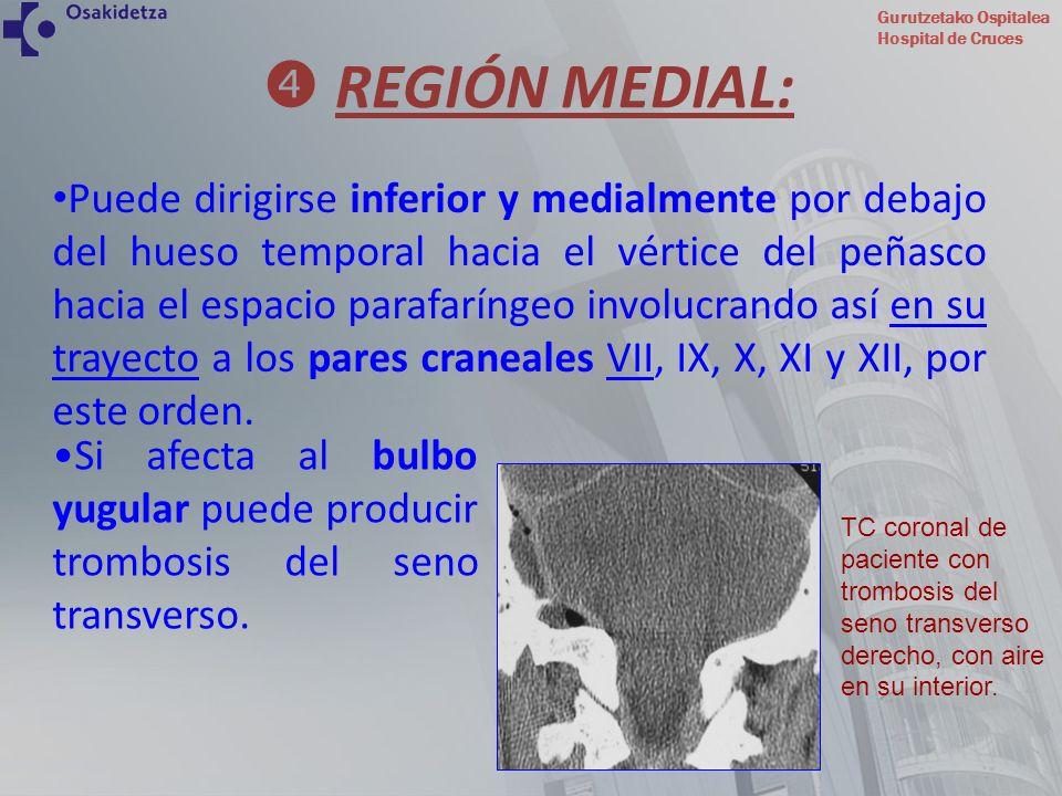 Gurutzetako Ospitalea Hospital de Cruces Puede dirigirse inferior y medialmente por debajo del hueso temporal hacia el vértice del peñasco hacia el es