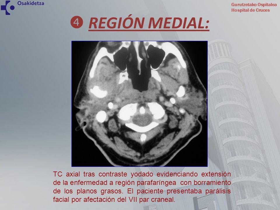 Gurutzetako Ospitalea Hospital de Cruces REGIÓN MEDIAL: TC axial tras contraste yodado evidenciando extensión de la enfermedad a región parafaríngea c