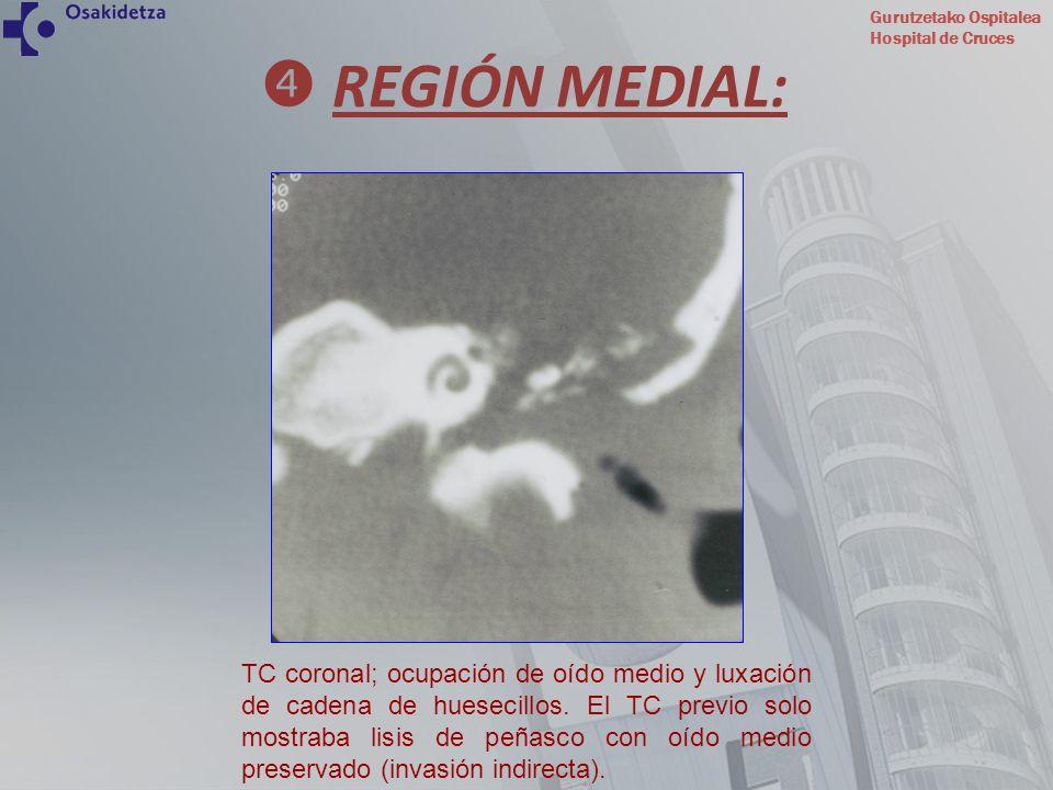 Gurutzetako Ospitalea Hospital de Cruces TC coronal; ocupación de oído medio y luxación de cadena de huesecillos. El TC previo solo mostraba lisis de