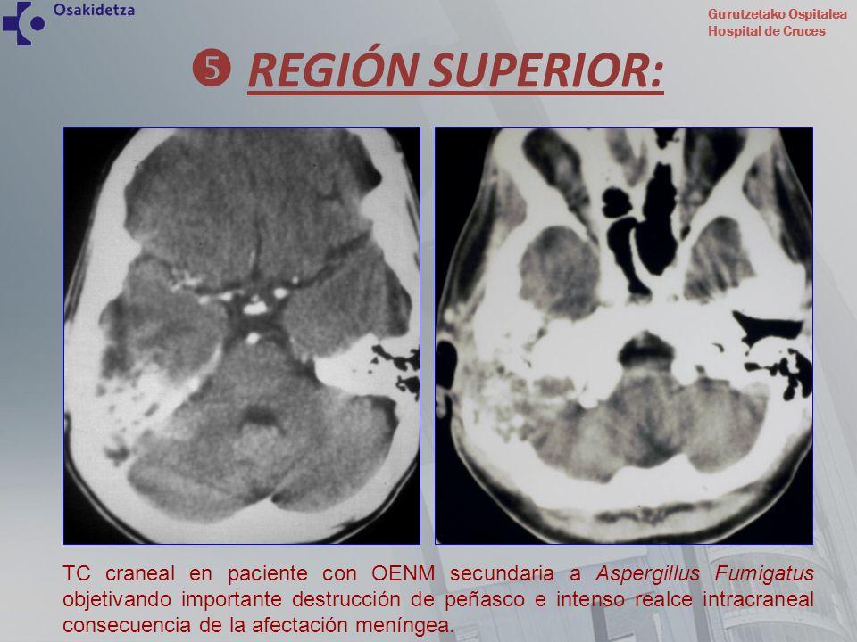 Gurutzetako Ospitalea Hospital de Cruces TC craneal en paciente con OENM secundaria a Aspergillus Fumigatus objetivando importante destrucción de peña