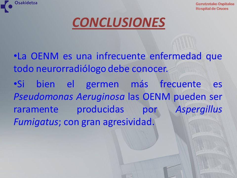 Gurutzetako Ospitalea Hospital de Cruces La OENM es una infrecuente enfermedad que todo neurorradiólogo debe conocer. Si bien el germen más frecuente