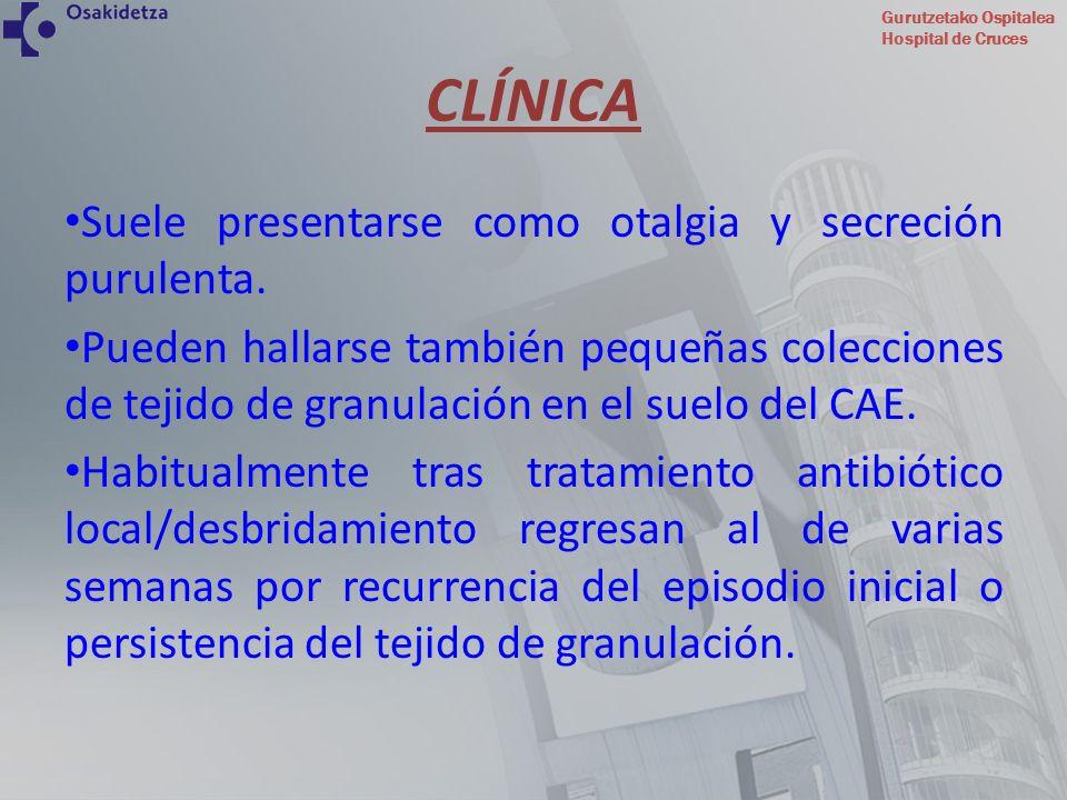 Gurutzetako Ospitalea Hospital de Cruces REGIÓN MEDIAL: TC axial tras contraste yodado evidenciando extensión de la enfermedad a región parafaríngea con borramiento de los planos grasos.
