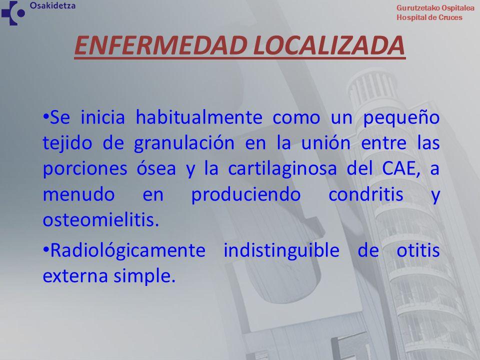 Gurutzetako Ospitalea Hospital de Cruces ENFERMEDAD LOCALIZADA Se inicia habitualmente como un pequeño tejido de granulación en la unión entre las por