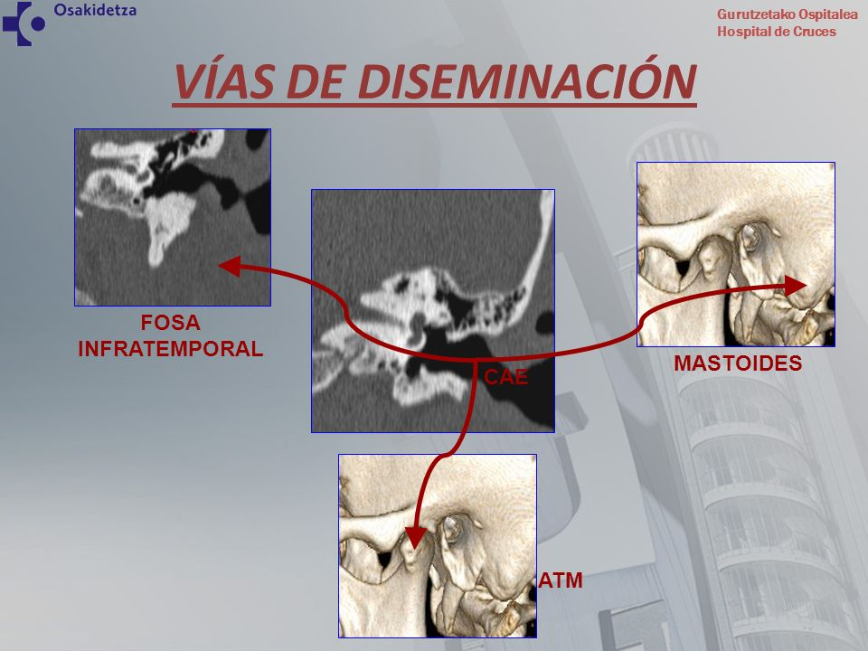 Gurutzetako Ospitalea Hospital de Cruces La enfermedad se extiende hacia el peñasco, llegando a invadir el espacio extradural intracraneal con riesgo de meningitis, absceso cerebral o trombosis del seno transverso.
