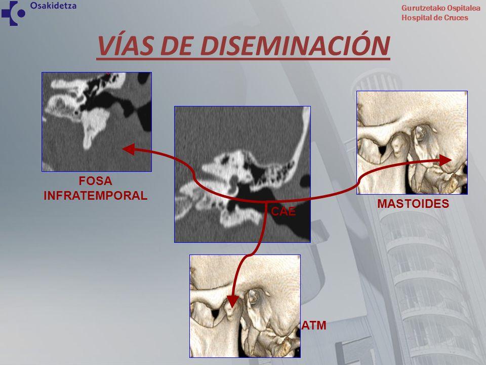Gurutzetako Ospitalea Hospital de Cruces VÍAS DE DISEMINACIÓN BASE DE CRÁNEO PARAFARINGE INTRACRANEAL OÍDO MEDIO CAE