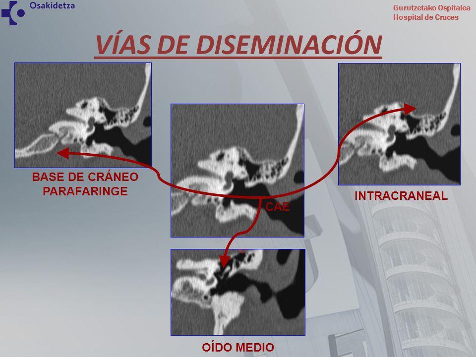 Gurutzetako Ospitalea Hospital de Cruces TC craneal en paciente con OENM secundaria a Aspergillus Fumigatus objetivando importante destrucción de peñasco e intenso realce intracraneal consecuencia de la afectación meníngea.
