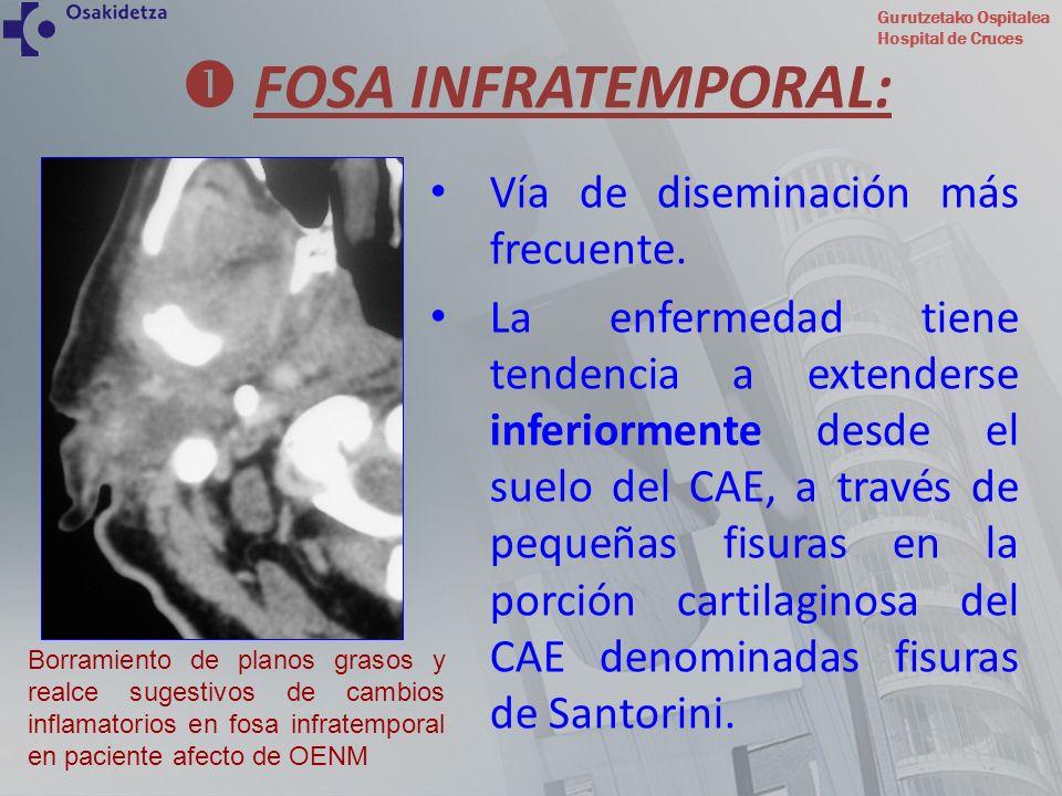 Gurutzetako Ospitalea Hospital de Cruces FOSA INFRATEMPORAL: Vía de diseminación más frecuente. La enfermedad tiene tendencia a extenderse inferiormen