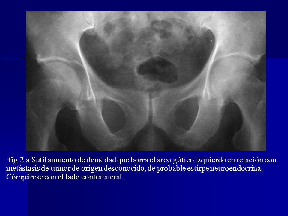 LÍNEA ILIOPUBIANA O ILIOPECTÍNEA Representa la columna anterior (iliopúbica) del acetábulo Representa la columna anterior (iliopúbica) del acetábulo Desde la articulación sacroiliaca hasta la sínfisis del pubis Desde la articulación sacroiliaca hasta la sínfisis del pubis ALTERACIÓN ALTERACIÓN Fracturas Metástasis