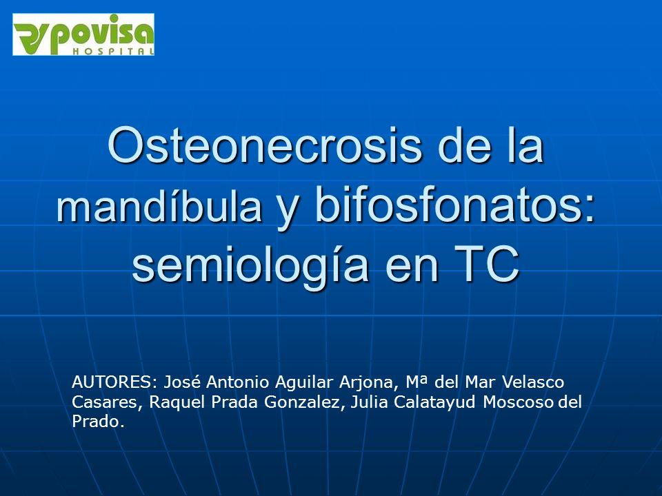 Osteonecrosis de la mandíbula y bifosfonatos: semiología en TC AUTORES: José Antonio Aguilar Arjona, Mª del Mar Velasco Casares, Raquel Prada Gonzalez