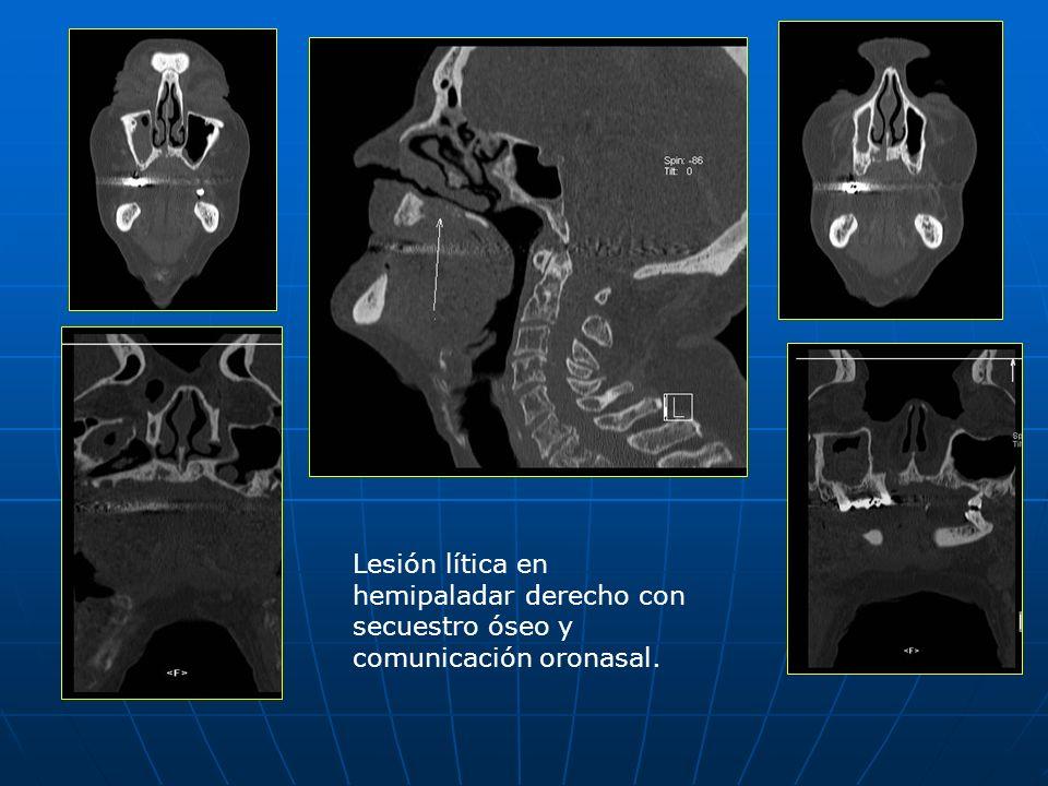Lesión lítica en hemipaladar derecho con secuestro óseo y comunicación oronasal.