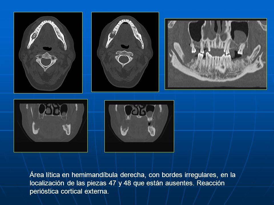 Área lítica en hemimandíbula derecha, con bordes irregulares, en la localización de las piezas 47 y 48 que están ausentes. Reacción perióstica cortica