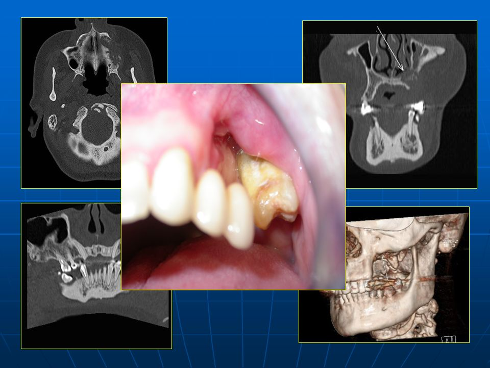 Lesión lítica de bordes mal definidos con fragmentación y secuestro óseo. Provoca disrupción del suelo de la fosa nasal y del seno maxilar izquierdo.