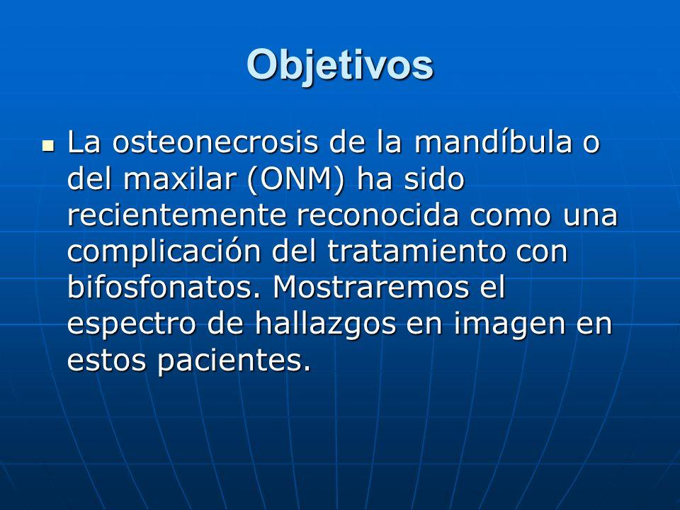 Objetivos La osteonecrosis de la mandíbula o del maxilar (ONM) ha sido recientemente reconocida como una complicación del tratamiento con bifosfonatos