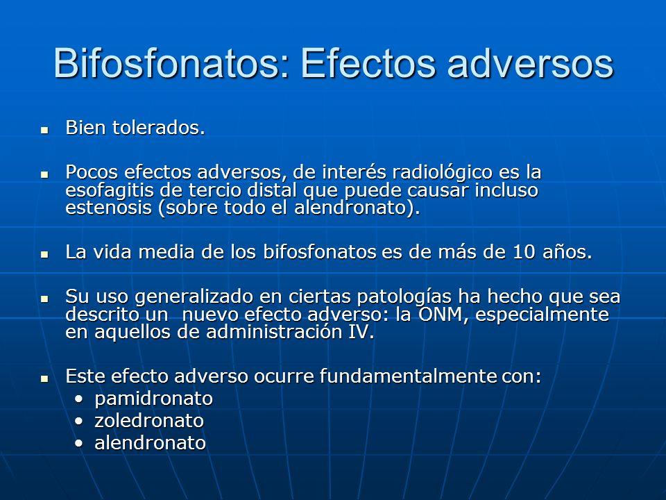 Bifosfonatos: Efectos adversos Bien tolerados. Bien tolerados. Pocos efectos adversos, de interés radiológico es la esofagitis de tercio distal que pu