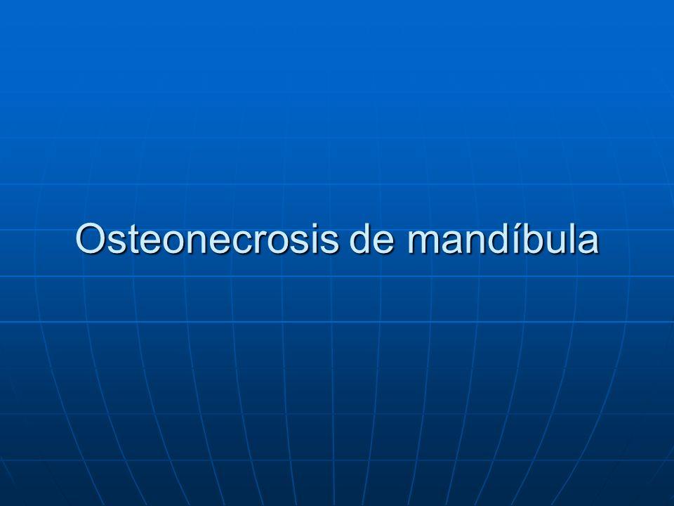 Osteonecrosis mandibular ¿qué es.