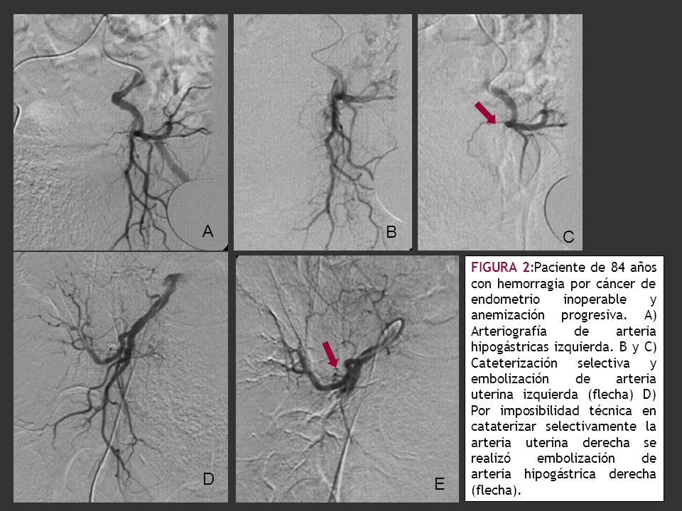 FIGURA 2:Paciente de 84 años con hemorragia por cáncer de endometrio inoperable y anemización progresiva. A) Arteriografía de arteria hipogástricas iz