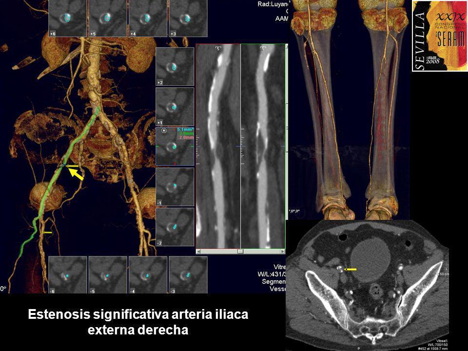 Estenosis significativa arteria iliaca externa derecha