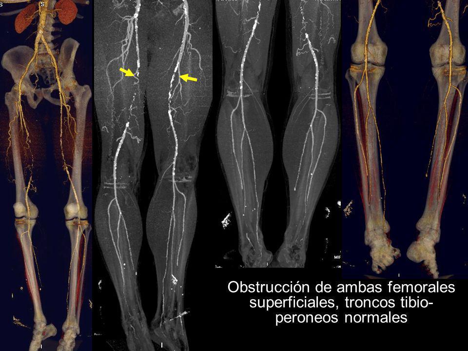 Obstrucción de ambas femorales superficiales, troncos tibio- peroneos normales