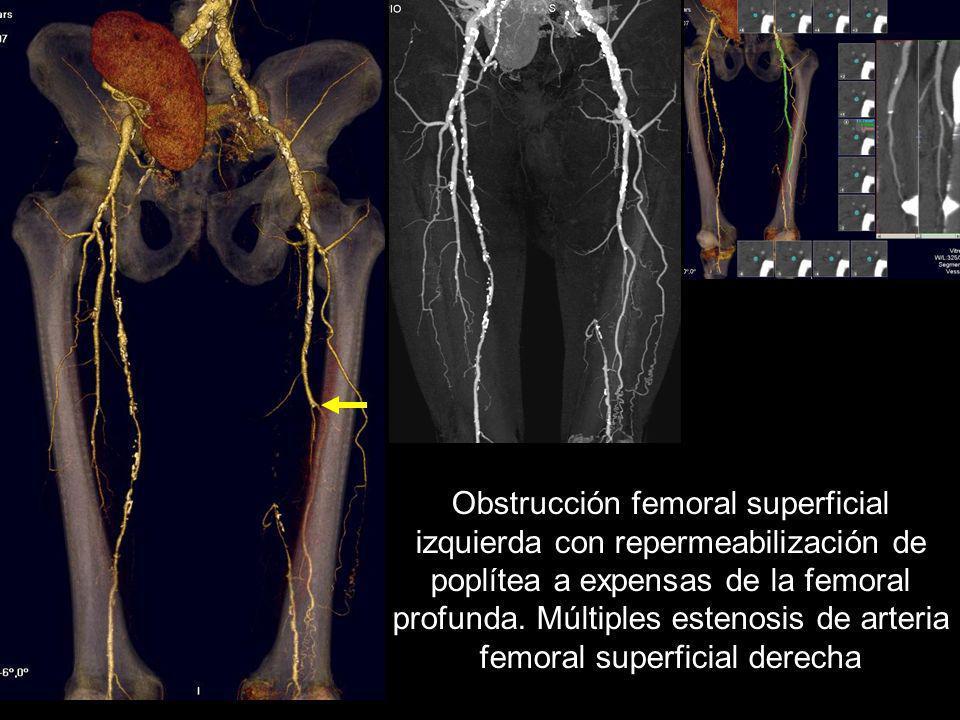 Obstrucción femoral superficial izquierda con repermeabilización de poplítea a expensas de la femoral profunda. Múltiples estenosis de arteria femoral