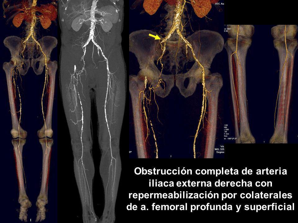 Obstrucción completa de arteria iliaca externa derecha con repermeabilización por colaterales de a. femoral profunda y superficial
