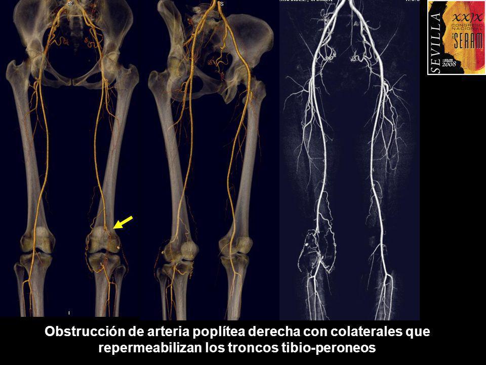Obstrucción de arteria poplítea derecha con colaterales que repermeabilizan los troncos tibio-peroneos