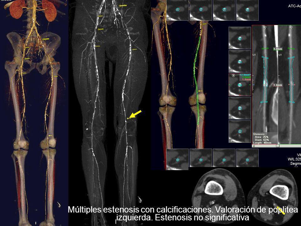 Múltiples estenosis con calcificaciones. Valoración de poplitea izquierda. Estenosis no significativa