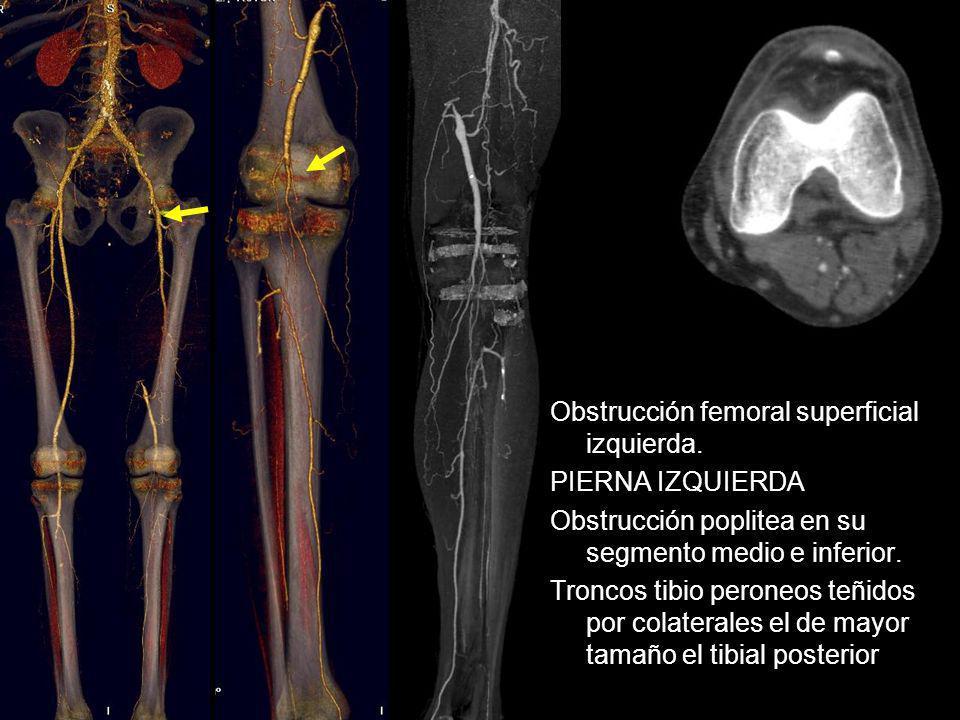 Obstrucción femoral superficial izquierda. PIERNA IZQUIERDA Obstrucción poplitea en su segmento medio e inferior. Troncos tibio peroneos teñidos por c