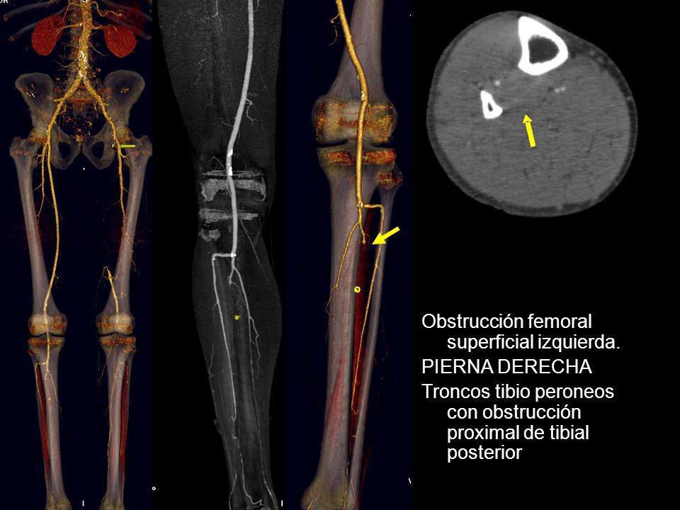 Obstrucción femoral superficial izquierda. PIERNA DERECHA Troncos tibio peroneos con obstrucción proximal de tibial posterior