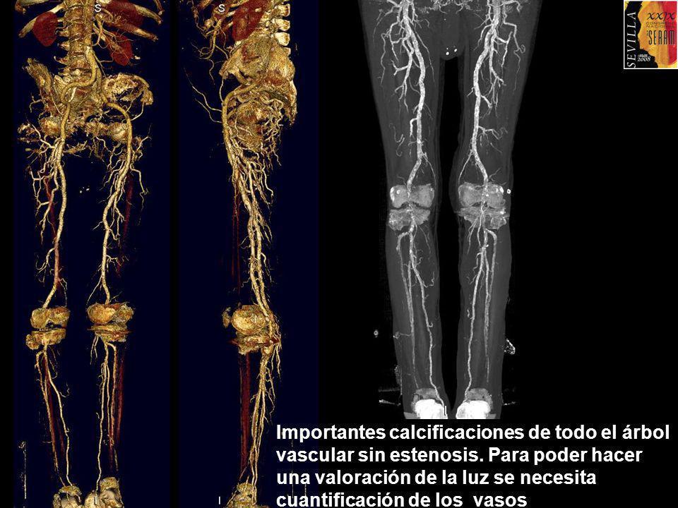 Importantes calcificaciones de todo el árbol vascular sin estenosis. Para poder hacer una valoración de la luz se necesita cuantificación de los vasos