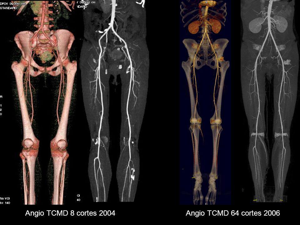Material y Método El angio TC se realizó desde la aorta abdominal hasta los pies, con grosor de corte de 0.5/64 se obtiene con este volumen y en postprocesado grosores de corte de 1mm y 0.8 de intervalo.
