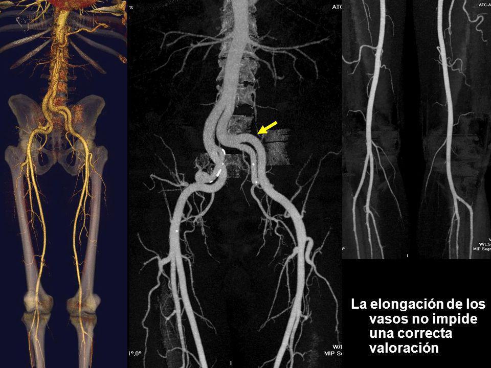 Resultados Discordancias en troncos distales Sorprendentemente el intervalo de tiempo entre la angioTC y la angiografía fue de: 95 días estando el rango entre 13 y 255.