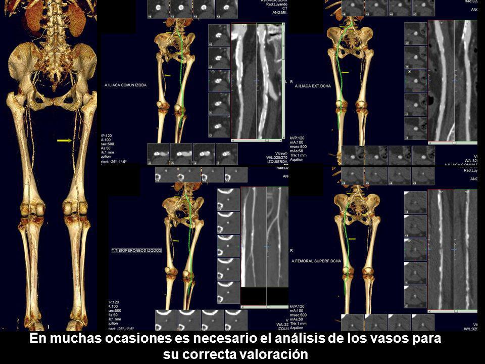 Obstrucción de femoral superficial izquierda en su tercio distal, con repermeabilización de poplitea por colaterales de arteria femoral profunda en Hunter.