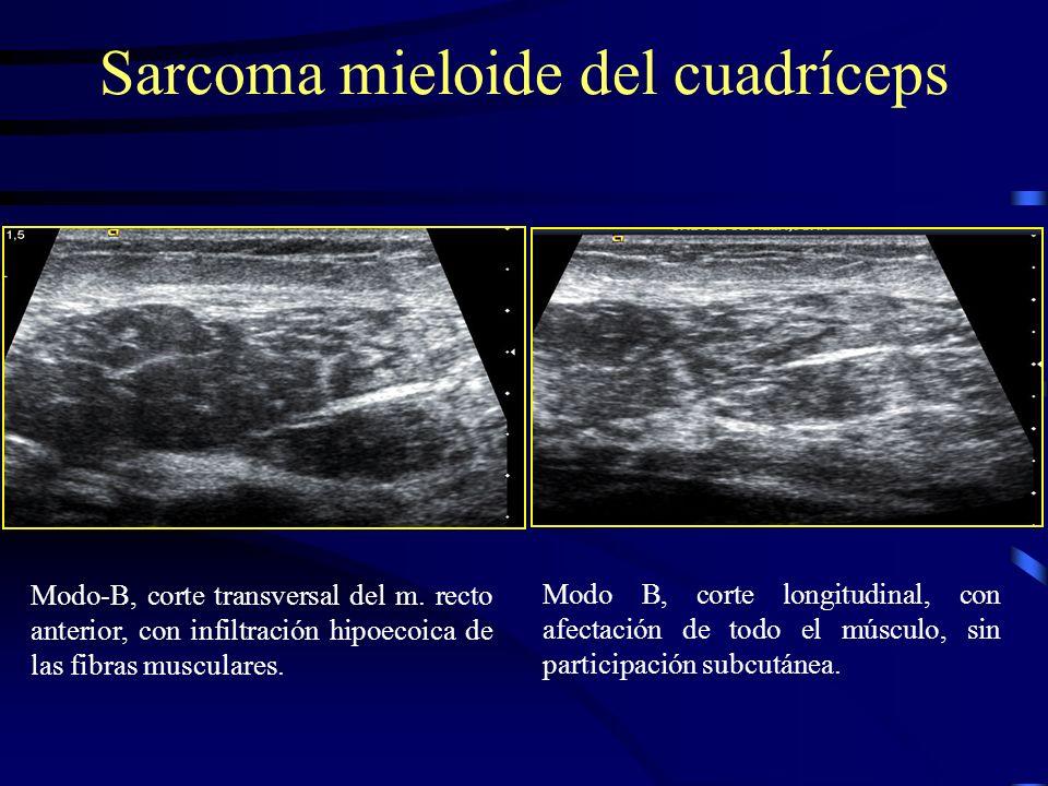 Modo-B, corte transversal del m. recto anterior, con infiltración hipoecoica de las fibras musculares. Sarcoma mieloide del cuadríceps Modo B, corte l
