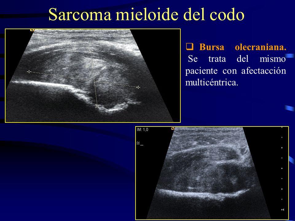 Bursa olecraniana. Se trata del mismo paciente con afectacción multicéntrica. Sarcoma mieloide del codo