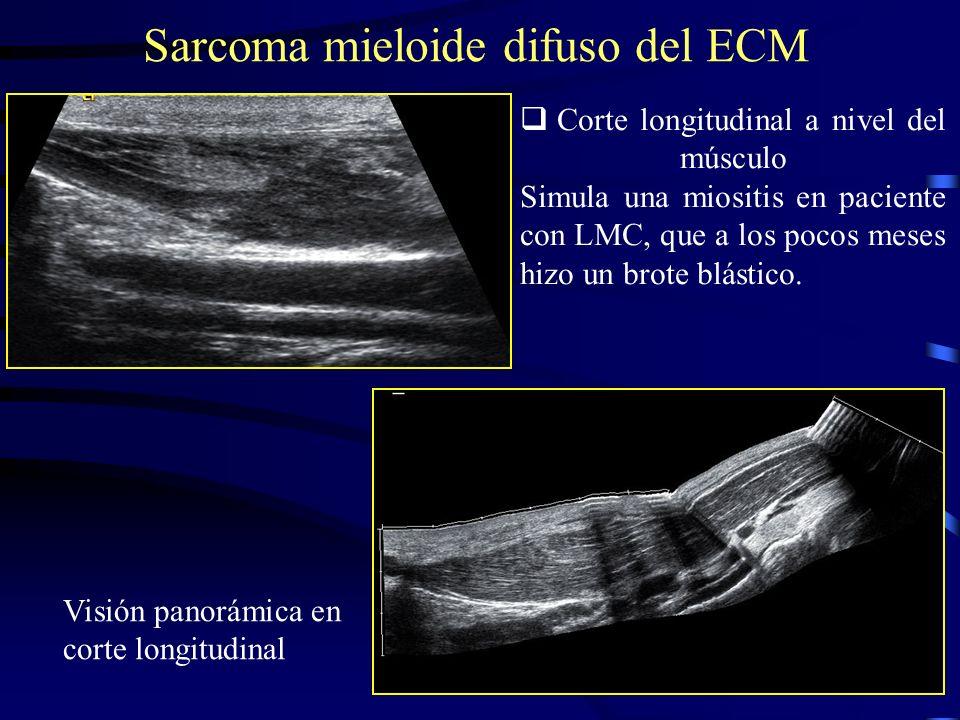Corte longitudinal a nivel del músculo Simula una miositis en paciente con LMC, que a los pocos meses hizo un brote blástico. Sarcoma mieloide difuso