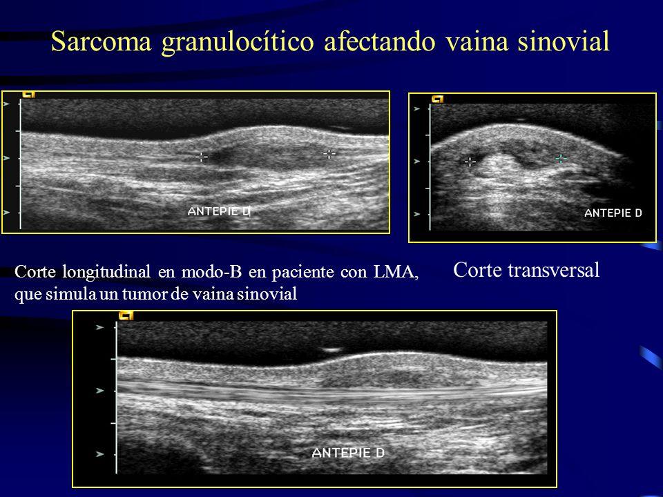 Sarcoma granulocítico afectando vaina sinovial Corte longitudinal en modo-B en paciente con LMA, que simula un tumor de vaina sinovial Corte transvers
