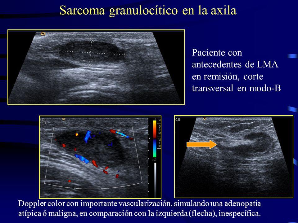 Sarcoma granulocítico en la axila Paciente con antecedentes de LMA en remisión, corte transversal en modo-B Doppler color con importante vascularizaci