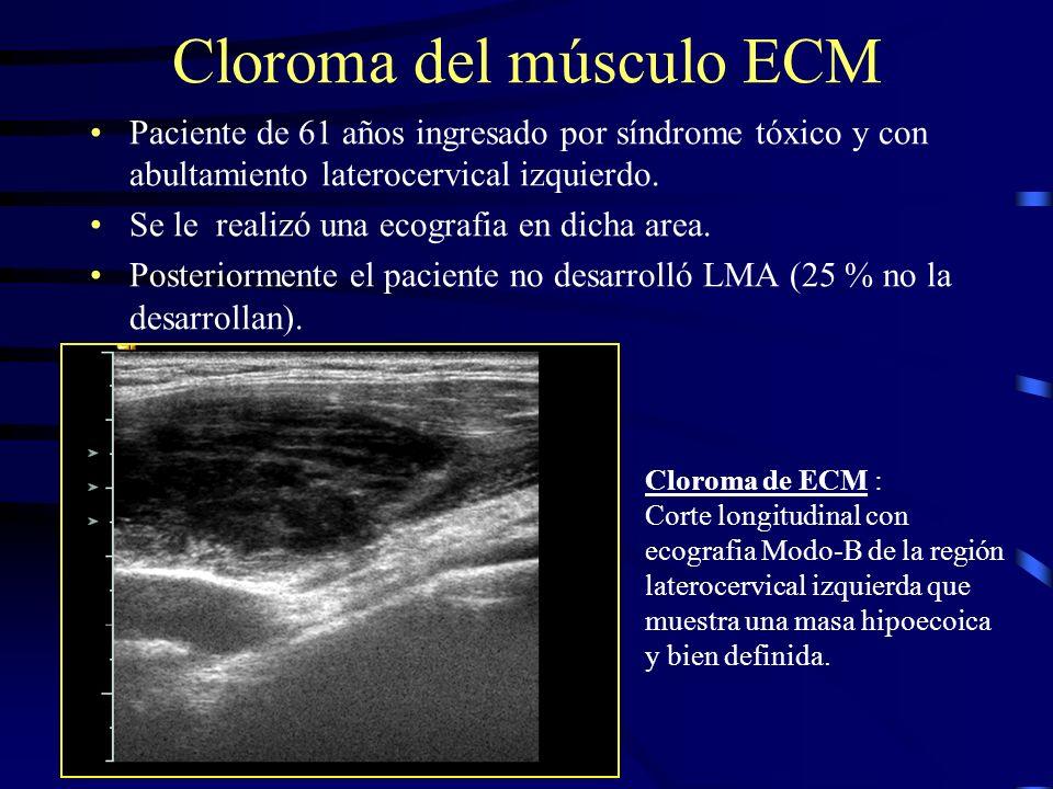 Cloroma del músculo ECM Paciente de 61 años ingresado por síndrome tóxico y con abultamiento laterocervical izquierdo. Se le realizó una ecografia en